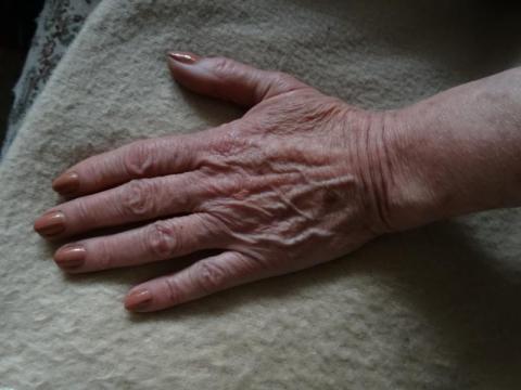 """Osteoporoza to """"cichy złodziej kości"""". Zrób badanie"""