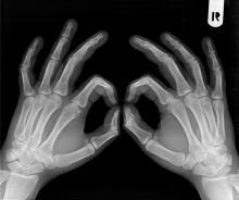 Osteoporoza atakuje po cichu, ale Urząd Miasta funduje darmowe badania