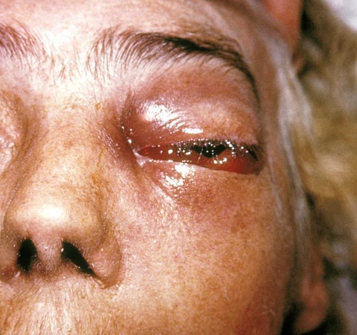 przypadek mukomurkozy. Fot.  CDC/Dr. Thomas F. Sellers/Emory University