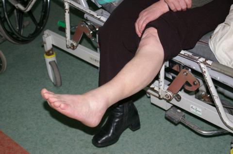 Złamiesz nogę na oblodzonym chodniku? Odpowiada za to gmina nawet jeśli odśnieżać miał właściciel posesji
